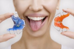 orthodontic appliances woodinville orthodontist soleil orthodontics