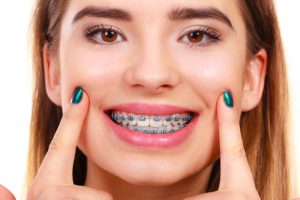get ready for braces in 2020 woodinville orthodontist soleil