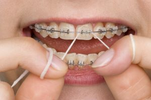 white spots braces orthodontics soleil woodinville