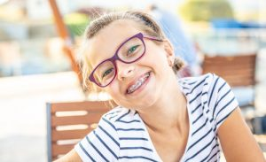 summer braces survival guide soleil orthodontics