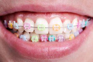 braces colors soleil orthodontics